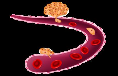 http://cellmaxlife.com/wp-content/uploads/2016/11/Circulating-Tumor-Cells-CTC.png